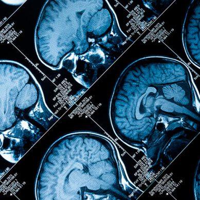 Purple Day, un día para luchar contra los falsos mitos de la epilepsia