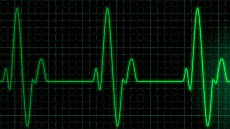 Desarrollan un detector de arritmias cardíacas para pacientes con COVID-19