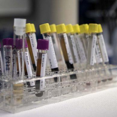 Investigadores UAL demuestran que más de un 13% de los adolescentes sanos padece déficit de hierro