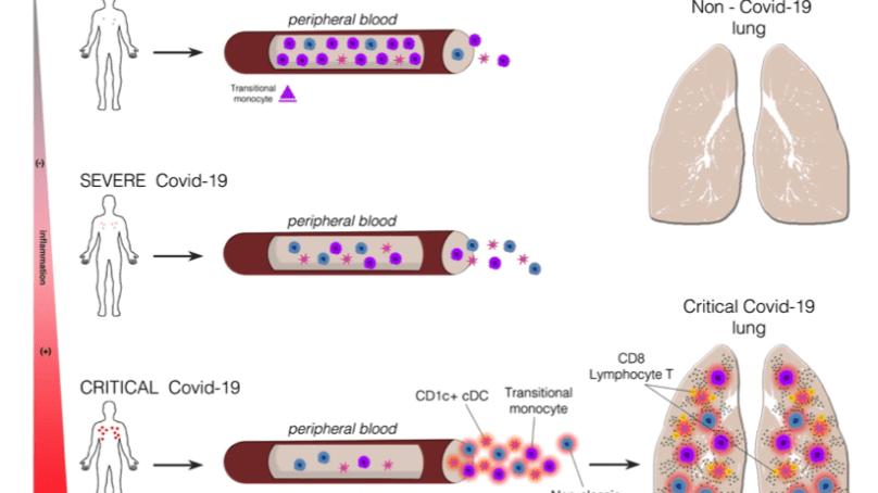 La COVID19 afecta distintos tipos celulares del sistema inmunitario según el grado de severidad