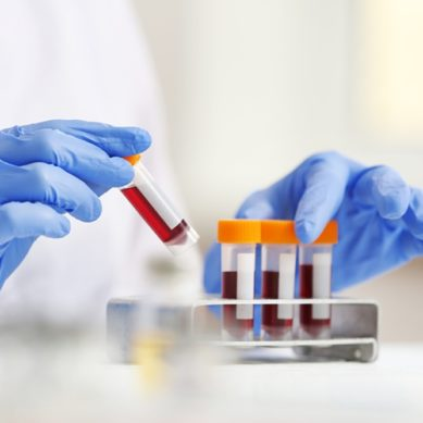 Identifican marcadores de infección por la COVID-19 a través de análisis de sangre