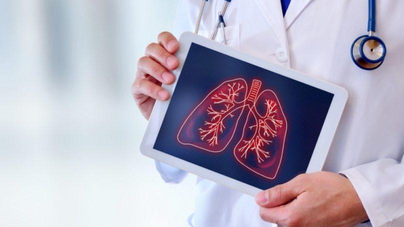 Estudian a los pacientes con trasplantes que padecen COVID