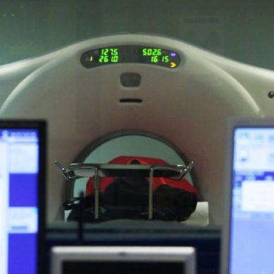 Radiofármacos contra el cáncer de próstata
