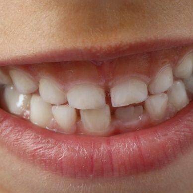 Revisiones dentales gratuitas para pacientes pediátricos