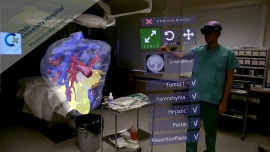 Un estudio pionero de la UCO consigue mayor precisión en las cirugías de cáncer de hígado